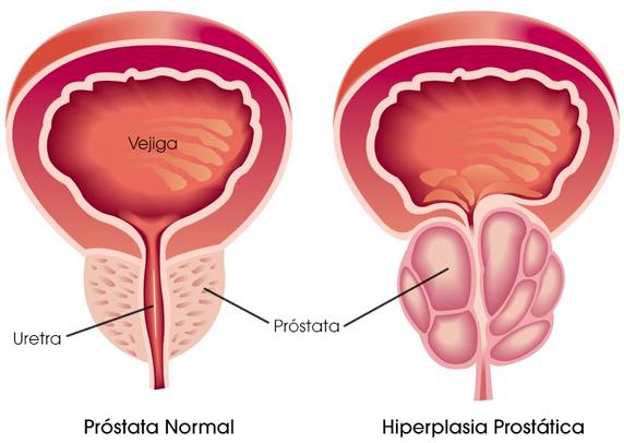 Comparación entre una próstata saludable y una próstata con HPB